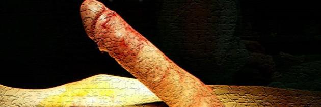 Пликация белочной оболочки при врожденном искривление полового члена вниз и влево