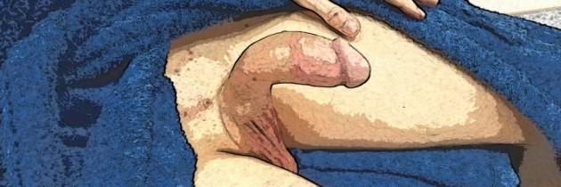 Выпрямление полового члена при его выраженном искривлении вниз