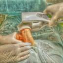 Операция Несбита — пликация белочной оболочки