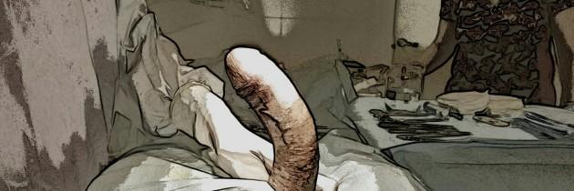 Врожденное искривление полового члена влево