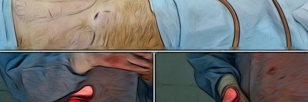 Сочетанная операция по искривлению полового члена и липосакцией живота, поясницы